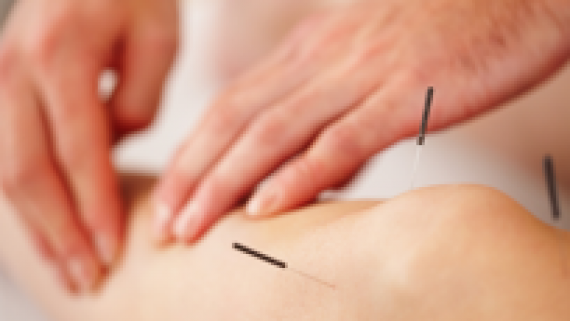 Acupuncture in Victoria BC