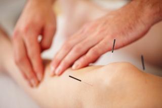 acupuncture victoria
