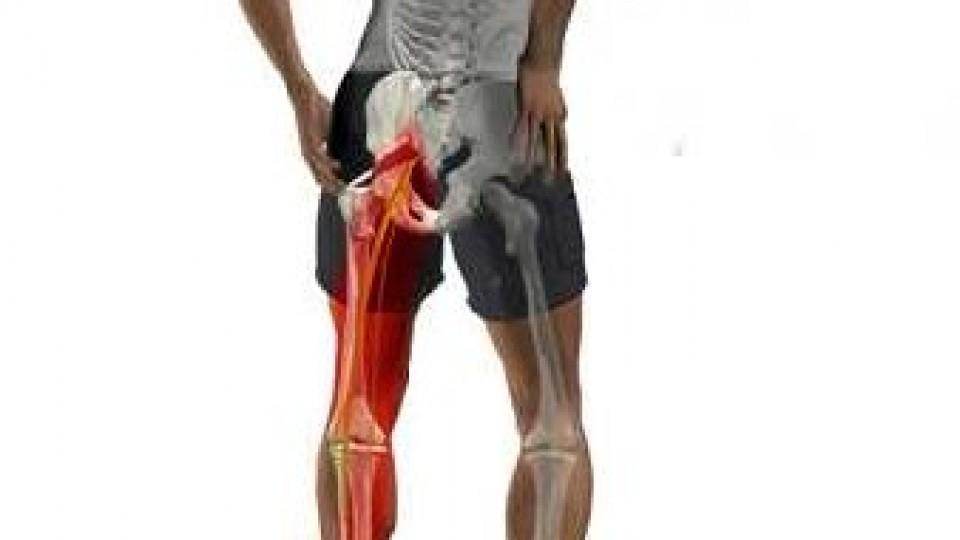 sciatic-nerve