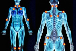 Treatment Options for Fibromyalgia