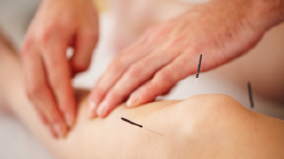 Acupuncture320x213
